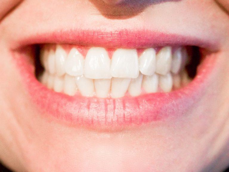 Obecna technologia wykorzystywana w salonach stomatologii estetycznej zdoła sprawić, że odzyskamy śliczny uśmieszek.